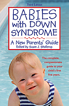 babies_with_down_syndrome3